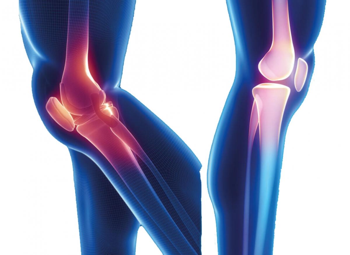 Arm – Leg Diseases