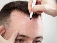 Méthode de greffe de cheveux DHI