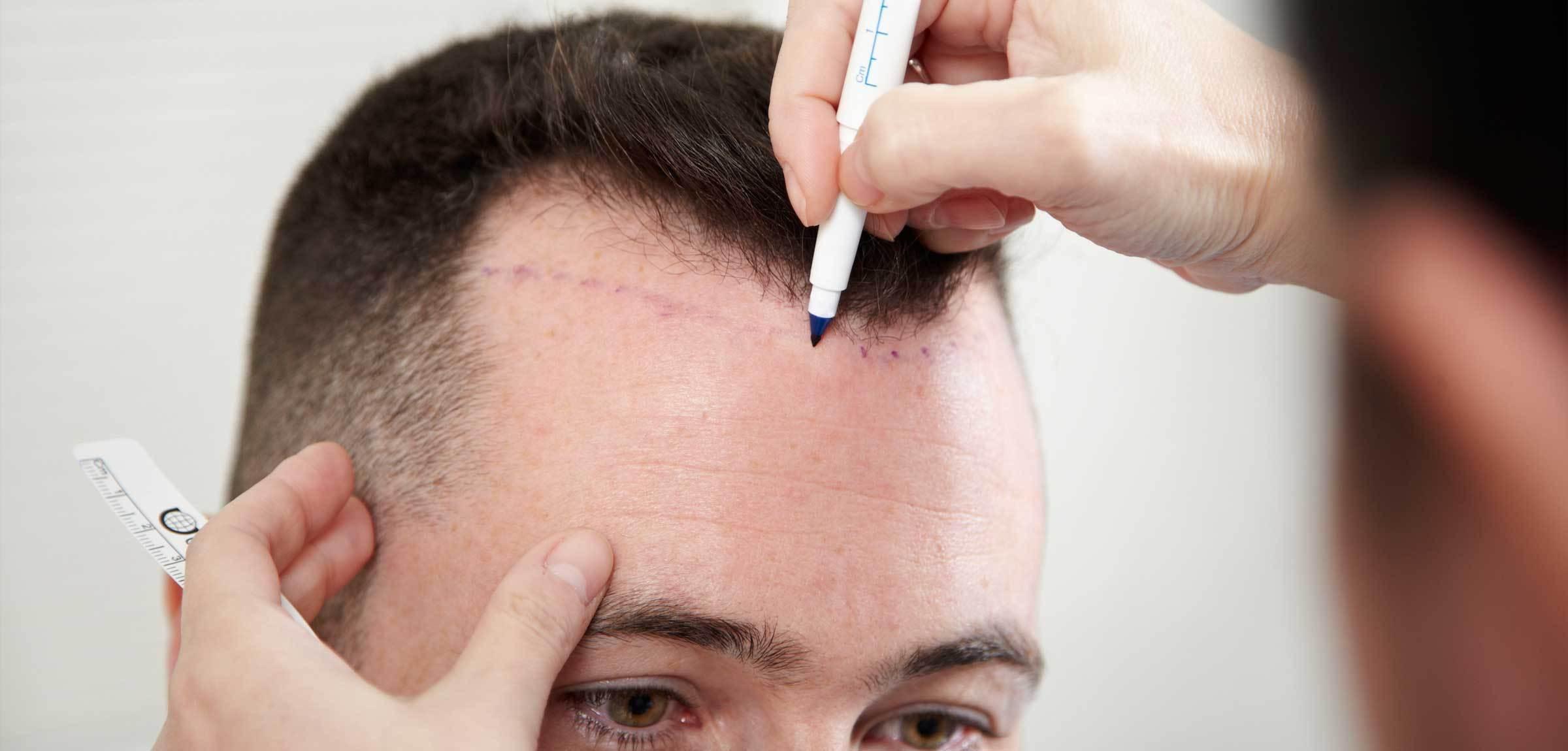 DHI Saç Ekimi Yöntemi