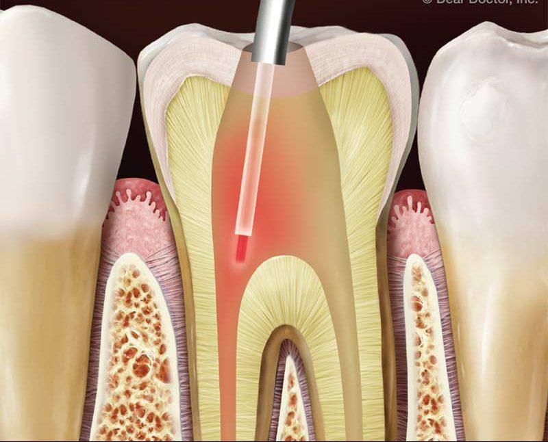 Lazer Destekli Diş Hekimliği