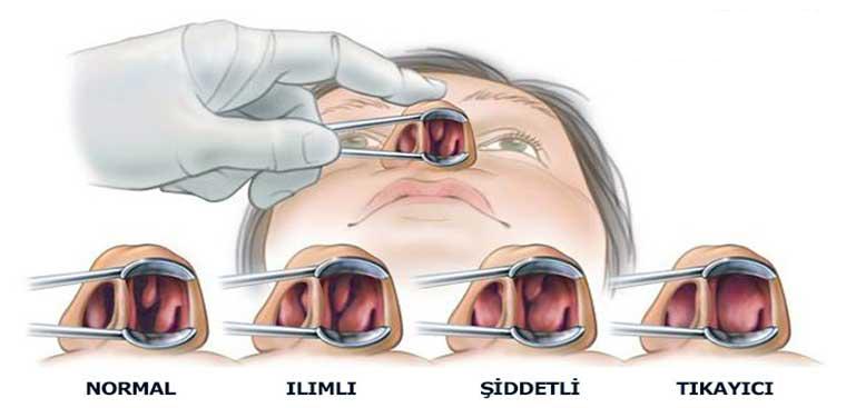 Nasal Diseases