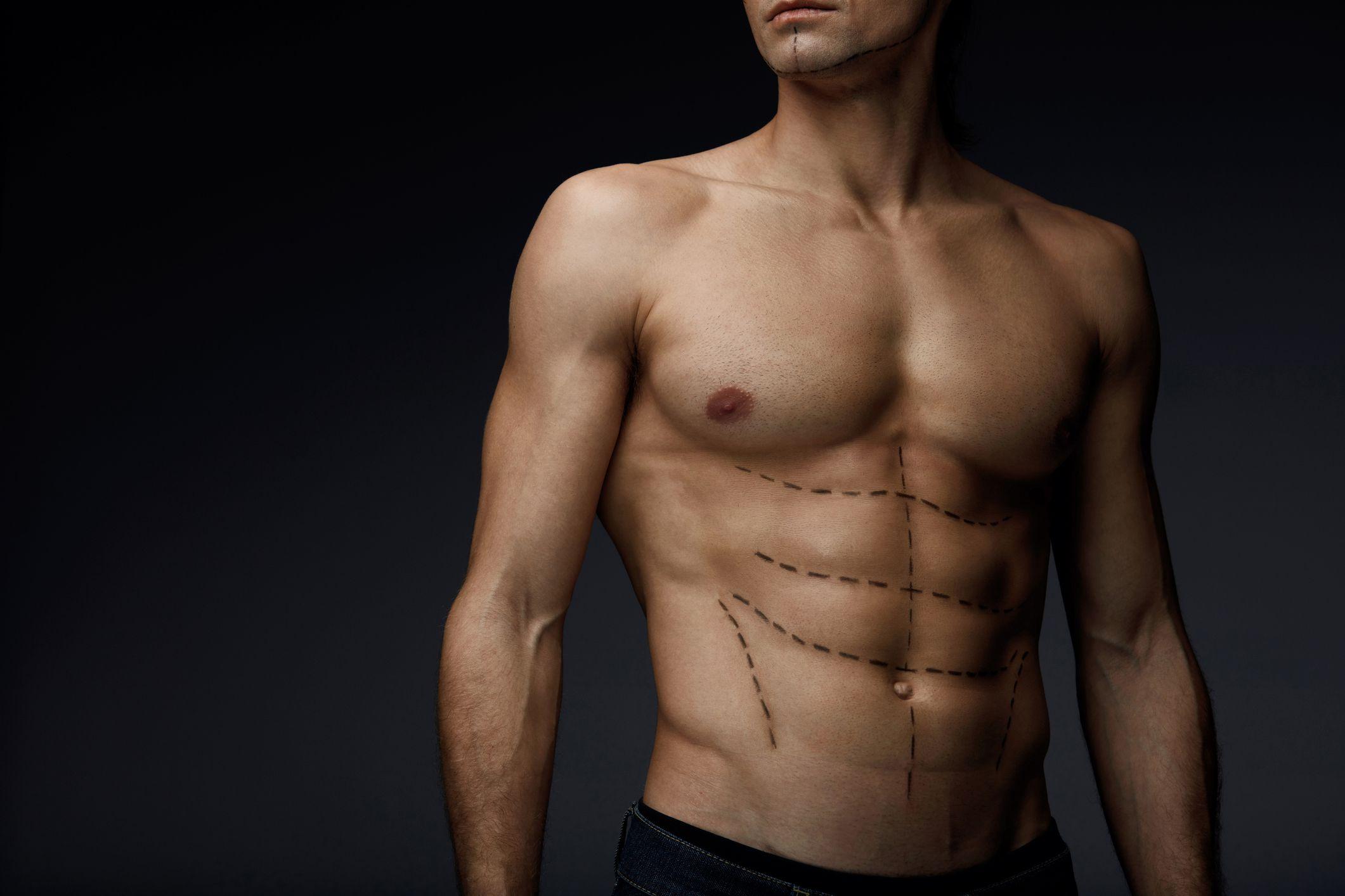 Pektoral İmplant Ameliyatı (Göğüs Kası Ameliyatı)