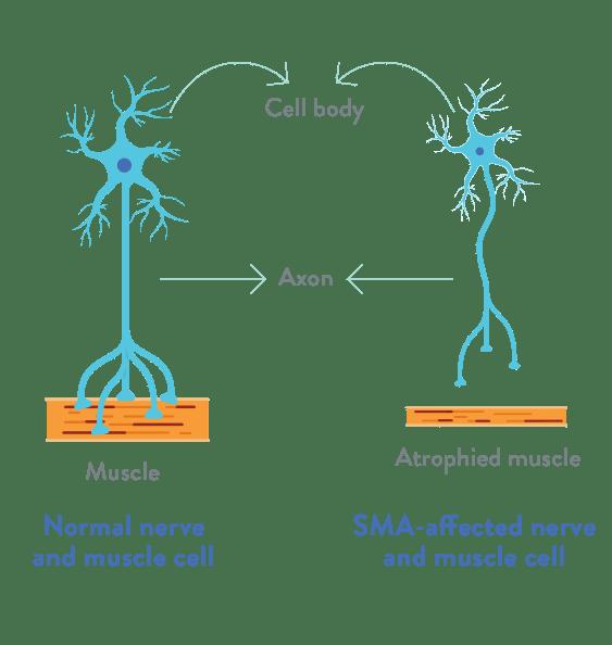 Spinal Müsküler Atrofi (SMA)