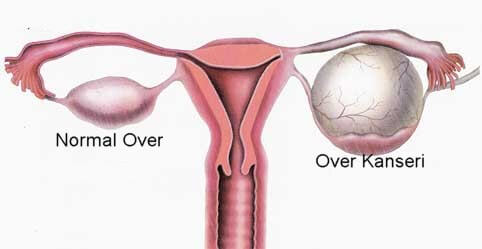 Ovarian Cyst (Endometriosis) What is Cyst?