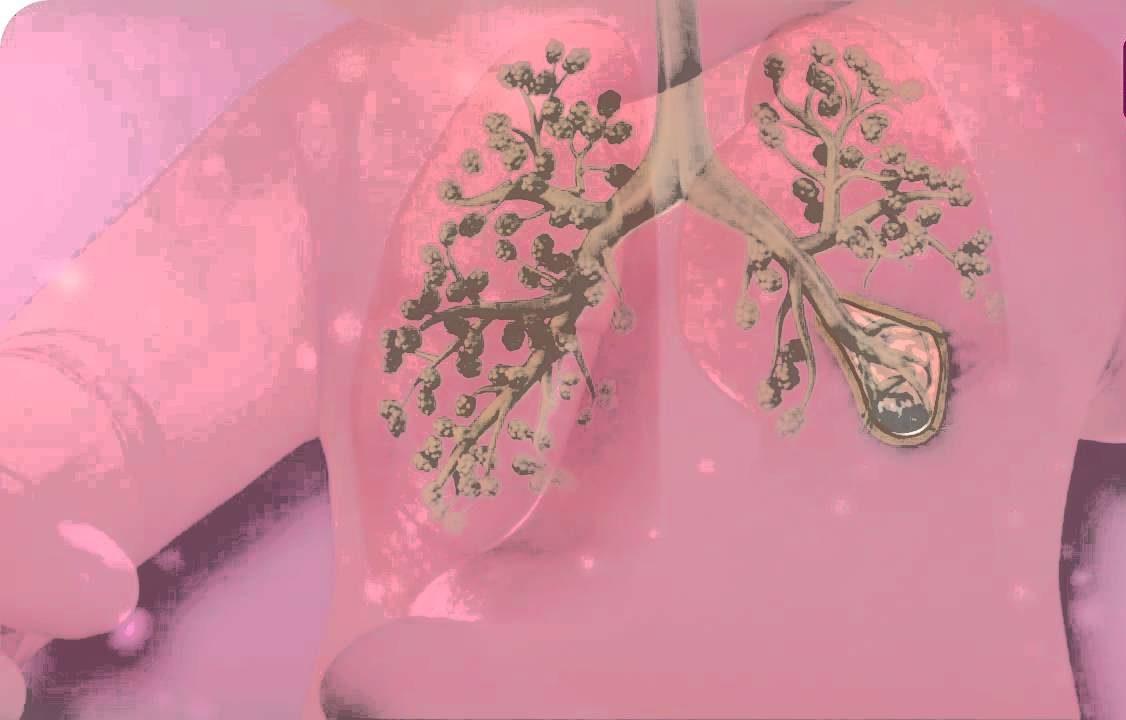 Bronkopulmoner Displazi (BPD)
