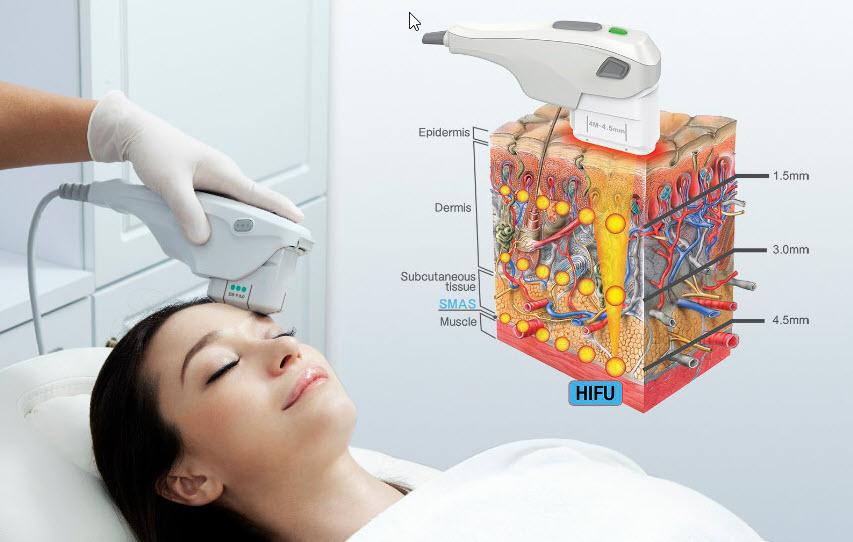 Fokuslu Ultrason (HIFU)