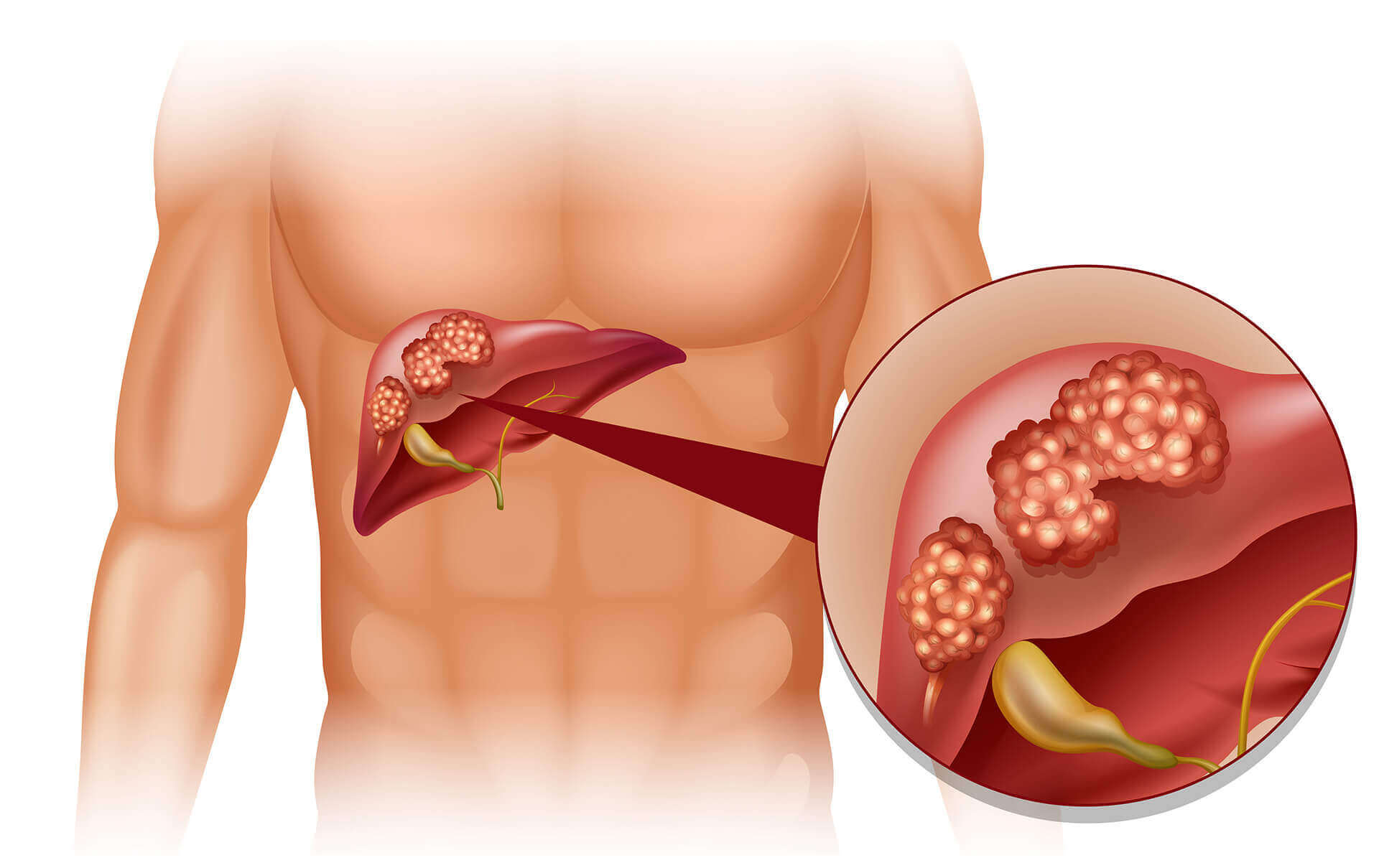 Hepatit B (Sarılık)