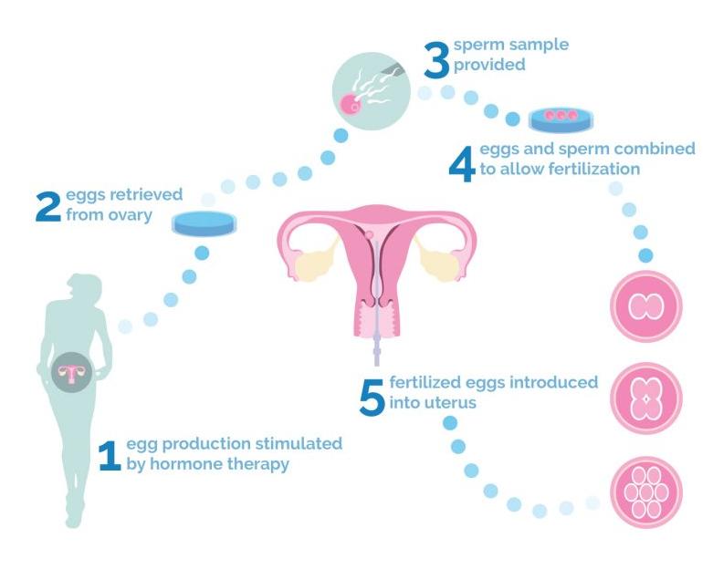 Tüp Bebek (IVF)